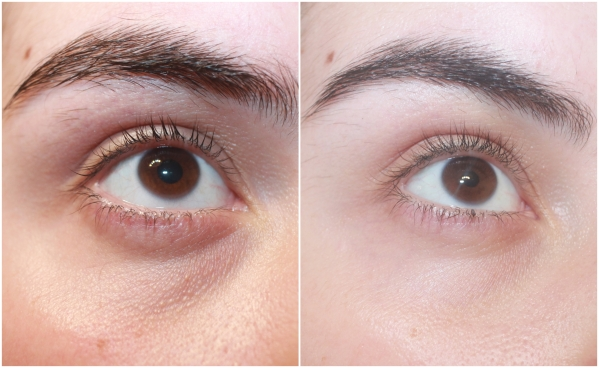 biomed-organics-forget-your-age-eye-cream-before-and-after.jpg